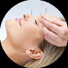 Western-Acupuncture-138x138