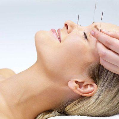 Western-Acupuncture-400x400